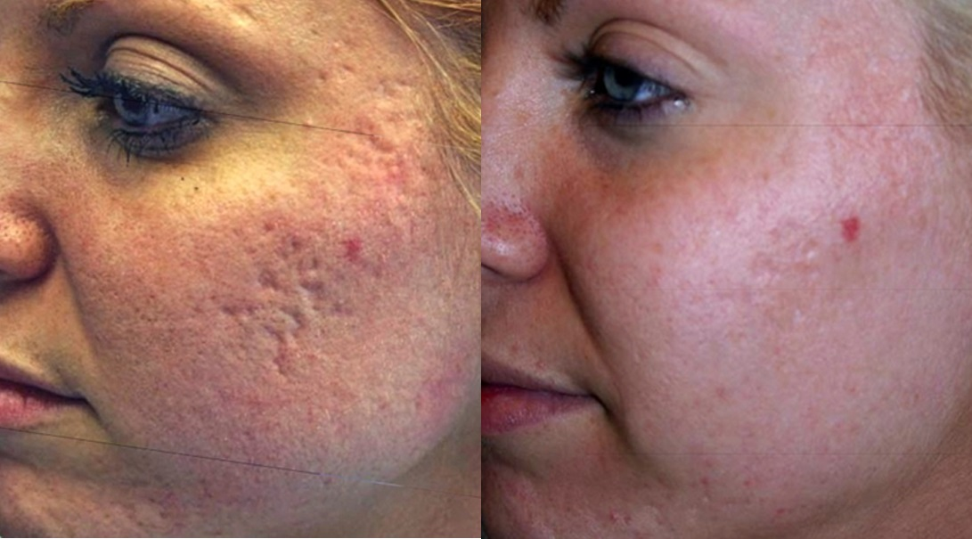 behandeling acne littekens