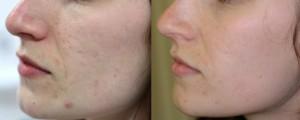laserbehandeling acne littekens