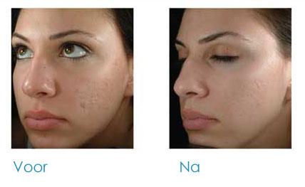 littekens gezicht behandelen